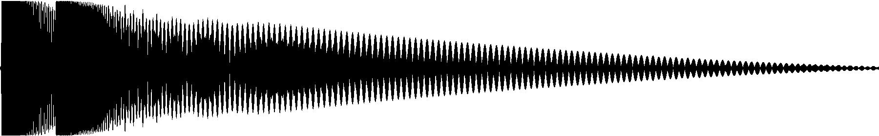 zap system 1